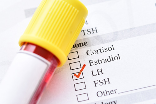Test results of luteinizing hormone and follicle stimulating hormone