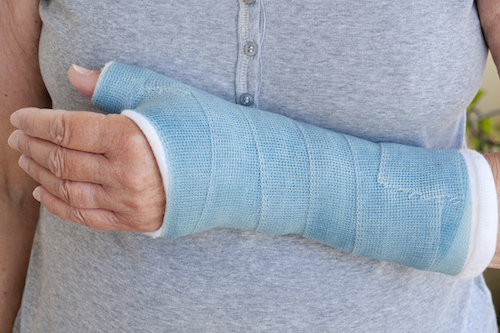 Learn how to speed the bone fracture healing time — simply and naturally