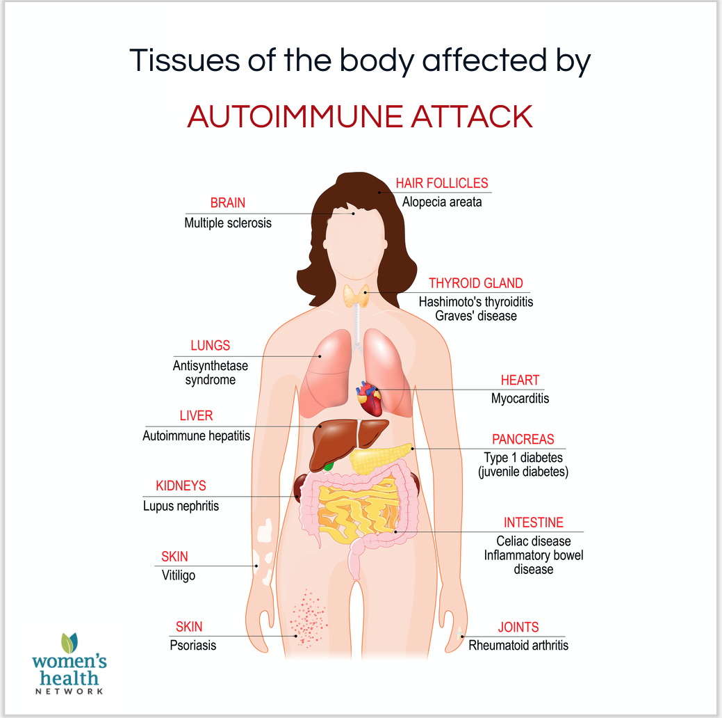 An immune health infographic showing tissues affected by autoimmune attack